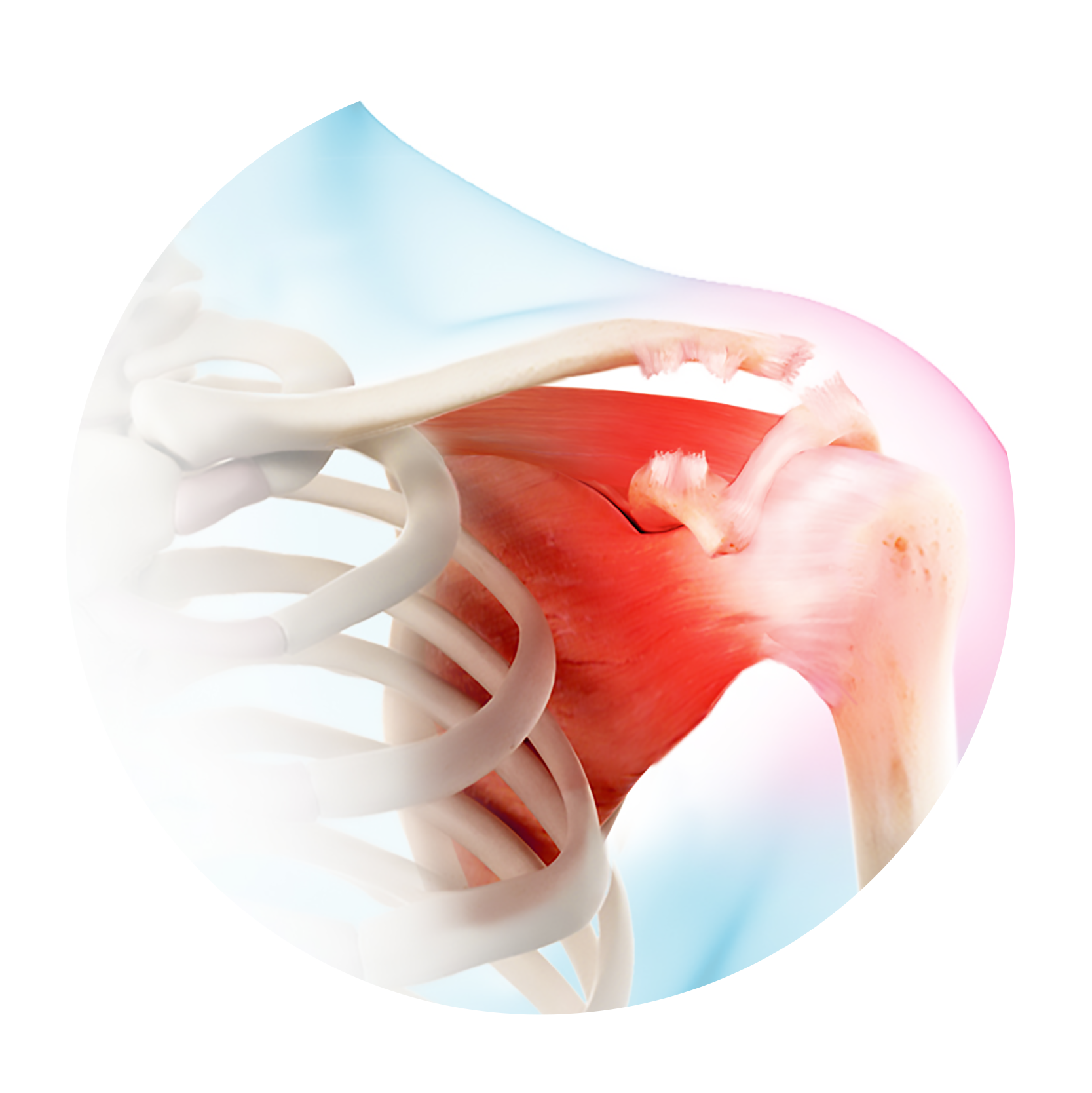 The Acromioclavicular Joint Module