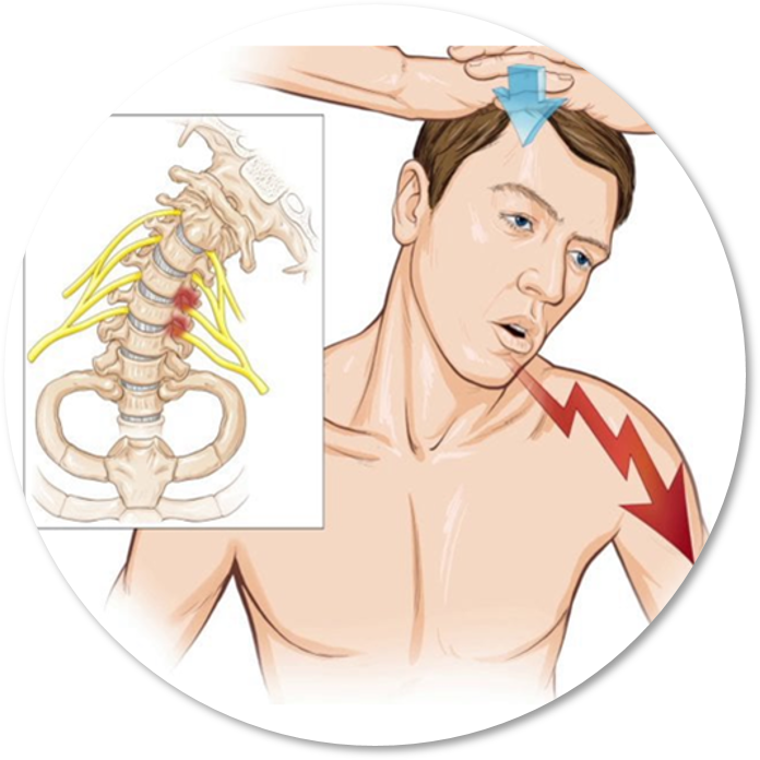 Shoulder Screening Course | Cervical Spine & Neurological Examination