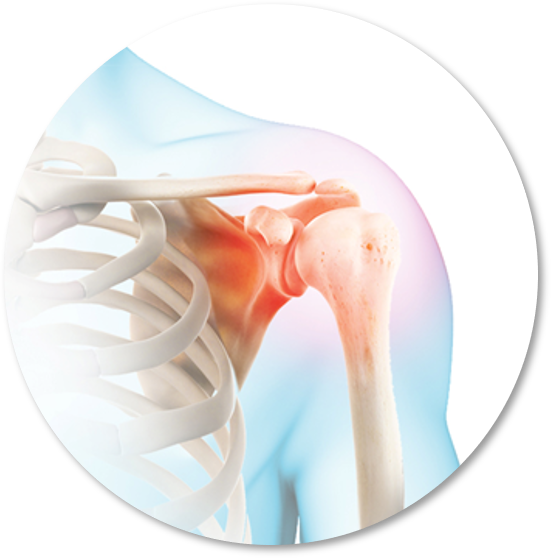 The Shoulder Course Series | All Courses and Workshops